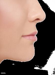 rhinoplasty_nose